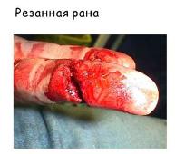 Виды ранений и первая помощь